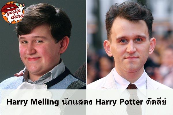 Harry Melling นักแสดง Harry Potter ดัดลีย์ #ข่าวดารา
